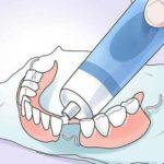 Какой клей подходит для зубных коронок
